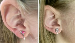 clip oorbellen
