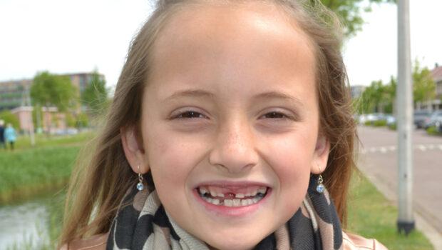 tanden wisselen, wanneer gaat mijn kind wisselen met tanden, tanden schema, melkgebit wisselen